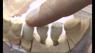 Зубные коронки на основе диоксида циркония