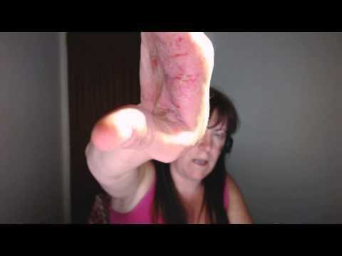 Die Schuppenflechte die Methoden der Behandlung nach bolotowu