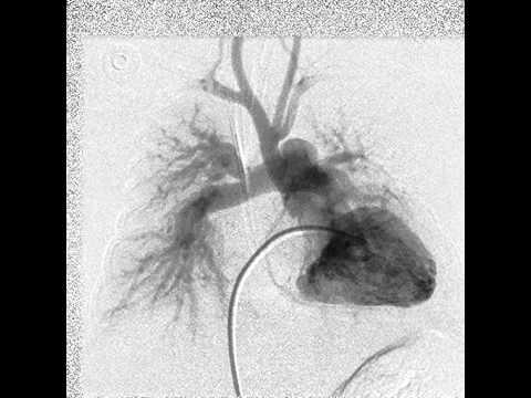 Forma sindrome di ipertensione portale intraepatica