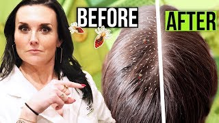How to Get Rid of Lice FAST!! 1 Hour Lice Treatment!