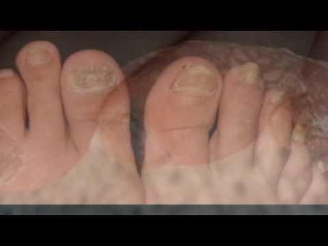 Die Wellen auf den Nägeln der Daumen der Hände des Grundes und die Behandlung