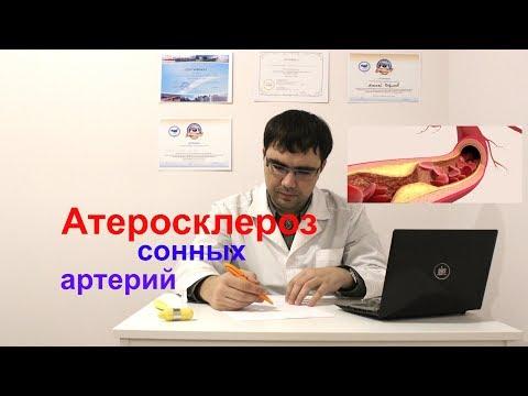 Атерокслероз сонных артерий: симптомы, лечение