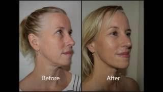 Electro Myopulse Accuscope Facial - Shannon - Week 8