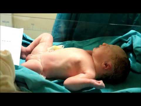 Defne Bebek Doğum Hikayesi