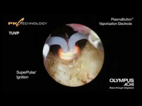 Precios de la depilación láser HPB