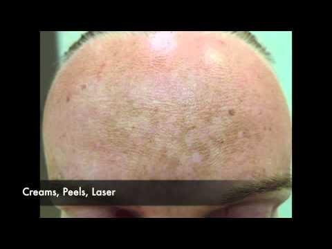 Langis bleaches pigment spots
