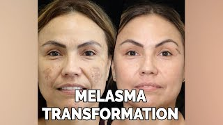 Irene's Melasma Transformation