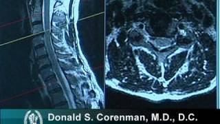 How to Read a MRI of Cervical Nerve Compression | Neck Pain | Colorado Spine Surgeon