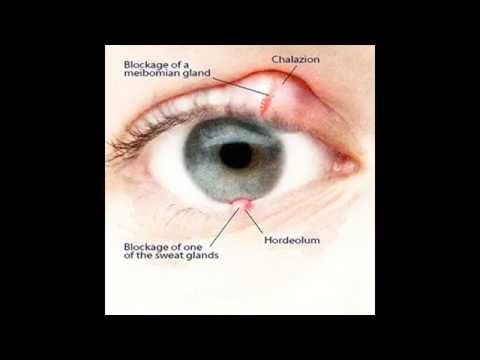 Как лечить и лечить проблемы с глазами