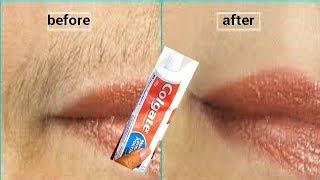 DON'T SHAVE REMOVE UPPER LIP HAIR IN 5 MINUTES USE TOOTHPASTE PERMANENT RESULT