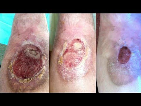 Video Honey cures skin sores bacterial infection ulcers