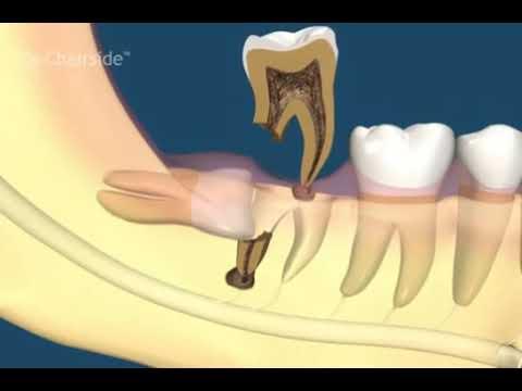 Сложное удаление зуба мудрости. Что важно знать пациенту!