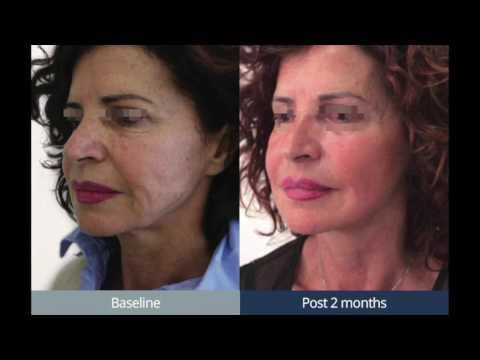 Le masque de gélatine pour la personne après 40 ans