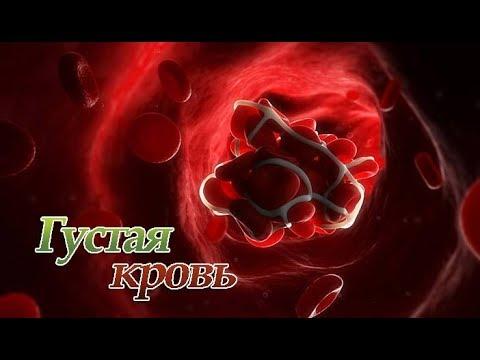 Маленькое кровососущее насекомое паразит 4