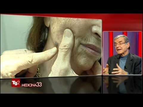 Eczema su pelle a uomini