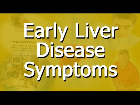 Video Early Liver Disease Symptoms