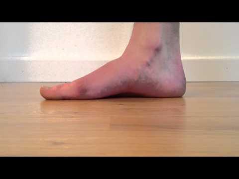 Die Kerne auf den Beinen der Riegel valgus pro