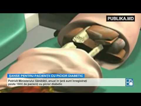 Dacă pentru a comuta de la injectarea insulinei pe tablete