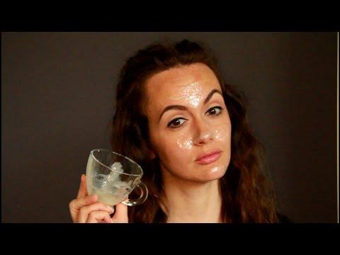 Отеки глаз при заболеваниях почек