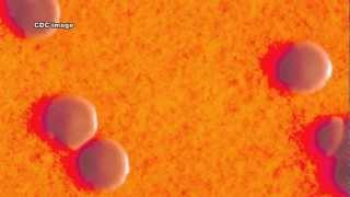 Corynebacterium diphtheria and Diphtheria