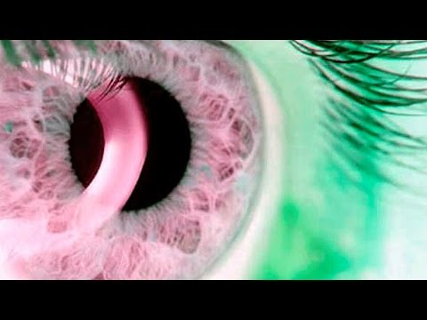 Операция на глаза с астигматизмом цены