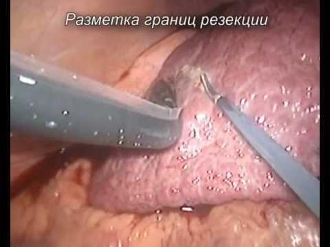 Схемы лечения вирусных гепатитах хронические