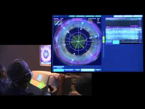 Laserowa korekcja zaćmy przeprowadzona przez Dr Satish Modi z Seeta Eye Center