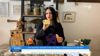 Mirëmëngjesi Kosovë - Disa metoda natyrale për trajtimin e sëmundjeve të lëkurës 20.04.2021