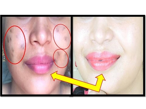 Cream ng pigment spot Miracle Clove
