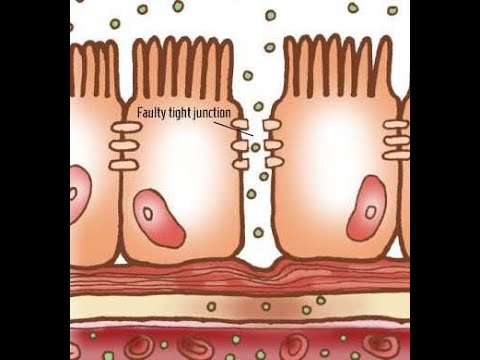 Anémia és prostatitis