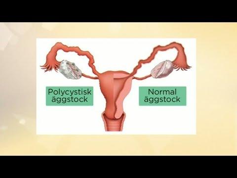 A masturabation okoz-e fogyást női