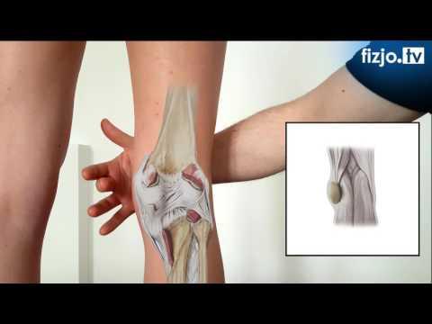 Mięśnie barku ból pleców