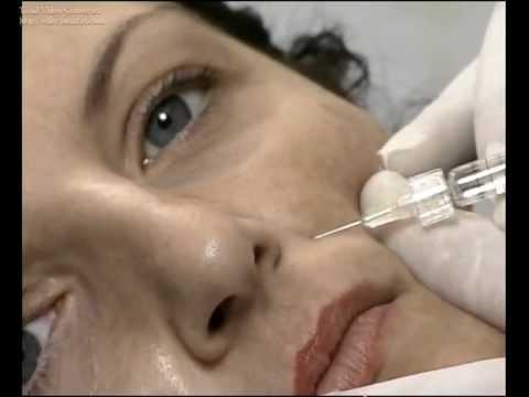 1 grado di malattia degenerativa del disco della colonna cervicale