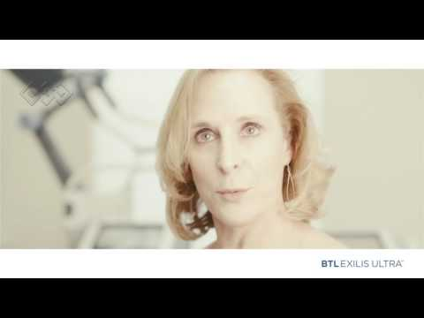 Mary´s neck experience with BTL Exilis Ultra