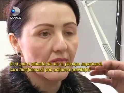 Tratamentul viziunii sanatorii în regiunea Yaroslavl