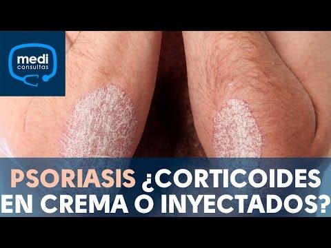 Eczema fungoso su una faccia di una fotografia