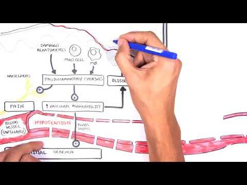 Burns (DETAILED) Overview – Types, Pathophysiology, TBSA