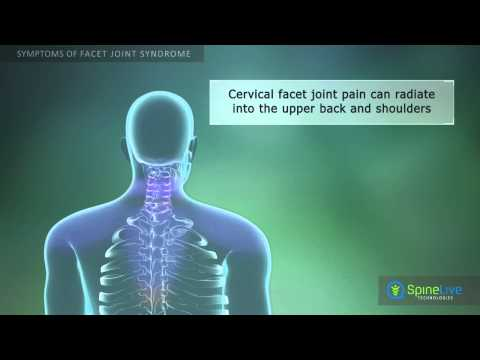 Video Facet Joint Syndrome Symptoms