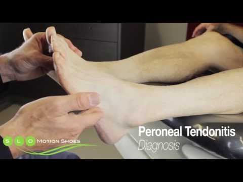Video Peroneal Tendonitis: Causes, Diagnosis, and Treatment