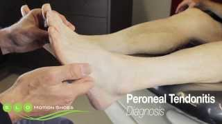 Peroneal Tendonitis: Causes, Diagnosis, and Treatment