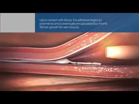 Trattamento da sanguisughe varicosity risposta