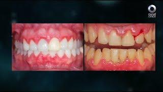 Diálogos en confianza (Salud) - Prevención y rehabilitación odontológica