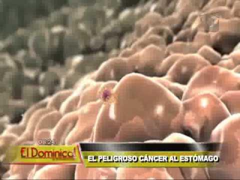 Termoterapia RF del adenoma de próstata