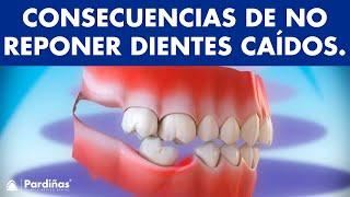 Consecuencias de no reponer los dientes caídos ©