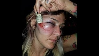Woman Shot in the Face by Police with Bean Bag at El Cajon Protest