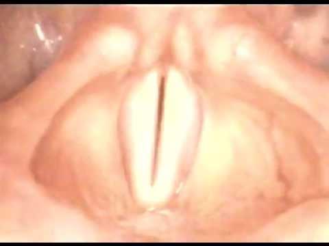 Das Mittel von ljambli der Würmer