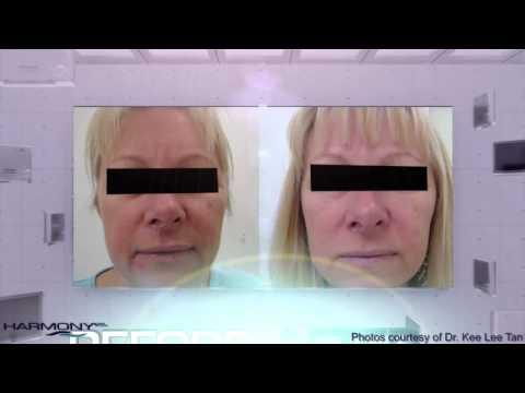 Clearlift ansiktsløft uten kirurgi hos eksklusive Le skin