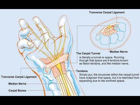 Die Medikamente für die Behandlung der Spinalgien