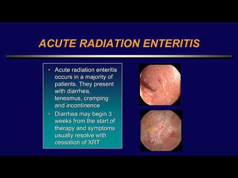 Infecții helmintice mixte