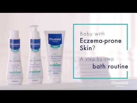 Liberarsi mani di eczemi